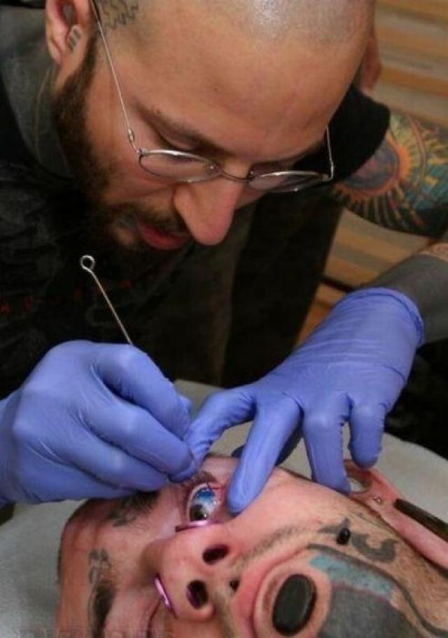 Впервые инъекционный метод нанесения татуировки глаза был изобретен Шенноном Лараттом и доктором Хауи и исполнен 1 июля 2007 года.