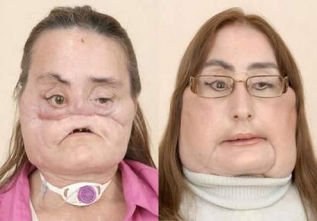 Женщине почти полностью пересадили лицо В декабре 2008 года 45-летней Конни Калп американские хирурги пересадили 80 : лицевой ткани.