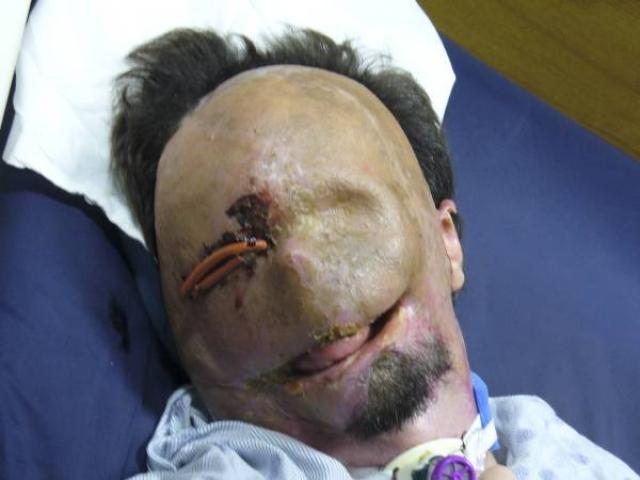 В марте 2011-го команда специалистов по трансплантации, которая состояла из 30 врачей, анестезиологов и медсестер, во главе с д-ром медицины Богданом Помагачем выполнила полную пересадку лица в бостонской больнице BWH. Процесс пересадки кожи с лица и бедер донора на лицевые кости пациента занял 15 часов.