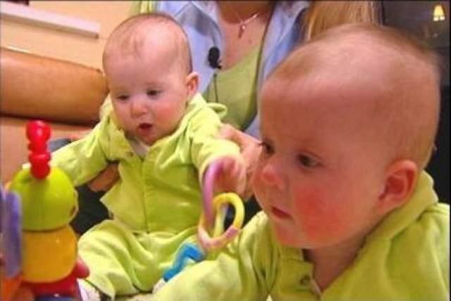 Сначала Гимбелы решили расстаться со слабым близнецом, но появилась альтернатива. С помощью лазеров врачи пережгли кровеносные сосуды, соединяющие близнецов, разделив их. Обе девочки-близнеца выжили и благополучно появились на свет.