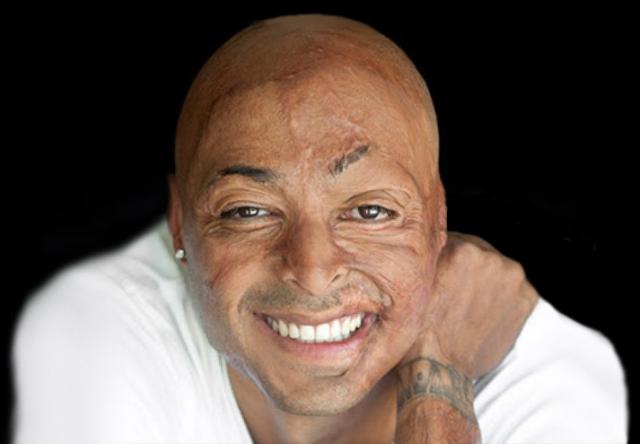 Дж. Ар. Мартинез - актер и звезда американского телевидения. В 2003-м Мартинез – на тот момент служивший в Ираке – сильно пострадал во время боевых действий, более 40 процентов его тела было обожжено.