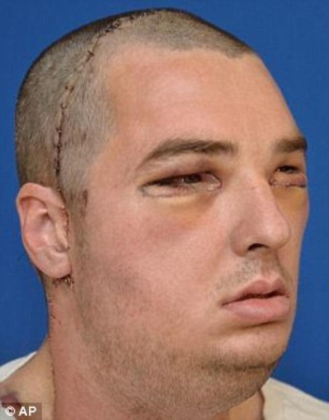 """""""Стройматериал"""" для своего второго лица 37-летний Ричард получил от 21-летнего Джошуа Аверсано, погибшего в дорожной аварии, при помощи органов которого ранее были спасены жизни еще пятерых человек."""