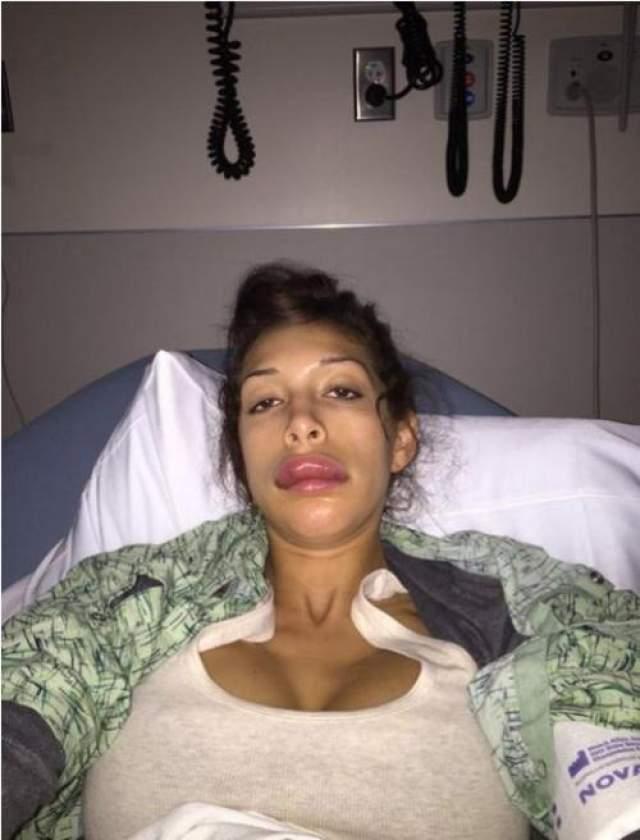 Абрахам рассказала, что пыталась пройти процедуру, при которой пластический хирург подправляет верхнюю губу имплантом вместо наполнителя. Девушка сообщила, что тщательно выбирала хирурга, но в результате, оказалась в отделении неотложной помощи, так как ее организм ответил на анестетик, который использовался перед операцией, сильной аллергической реакцией.