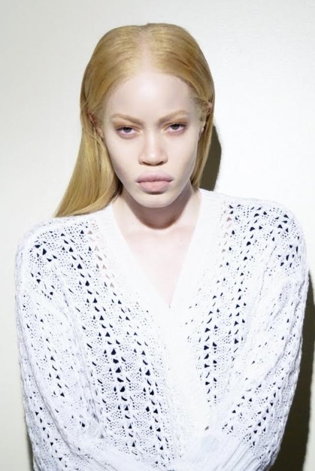 Диандра Форрест. Афроамериканка-альбинос сочетает в своей внешности черты лица типичные для своей расы и светлый цвет кожи и волос, что, конечно же превратило ее детство в ад.