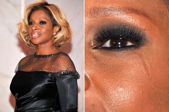 У певицы Мэри Джейн Блайдж шрам под левым глазом.