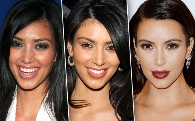"""Эксперты все же заметили, что первую коррекцию формы носа Ким сделала, когда ей было около 30. Нос сохранил свою """"индивидуальность"""", но стал аккуратнее и изящнее. Это называется щадящая, консервативная пластика."""