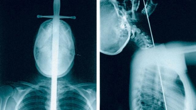 Рентгеновские снимки открыли тайну шпагоглотателей. Как выяснилось, они действительно способны запихнуть в горло меч, шпагу или саблю. На снимке хорошо видно, что оружие не складывается и не прячется в рукоятку. На снимке – Родерик Рассел – представитель этой профессии - в рентгеновском кабинете медицинского центра в Нью-Йорке. Главное – это встать так, чтобы пищевод и желудок были на одной прямой.