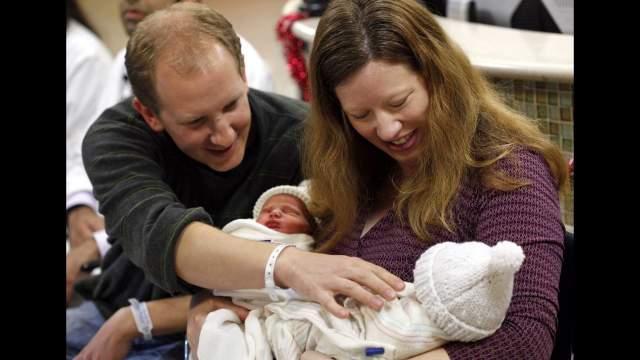 Патрик и Бенджамин Биндер , родились 2 февраля 1987 года в Германии сросшимися головами в области затылка. Как рассказывала их мать, узнав о патологии во время беременности, она хотела совершить самоубийство.