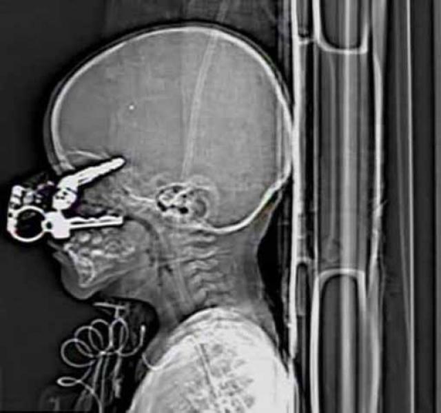 Родители Николы Холдермана поверили в чудо, когда сына удалось вытащить с того света. Мальчик игрался в комнате родителей, оступился и упал лицом прямо на ключи, которые пронзили его головной мозг. СМИ утверждают, что со времени несчастного случая здоровье мальчика полностью восстановилось.