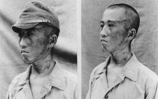 Этот пациент был примерно в 1981,2 м от эпицентра. Радиационные лучи поразили его слева. Можно заметить, как кепка защитила часть головы от ожогов.