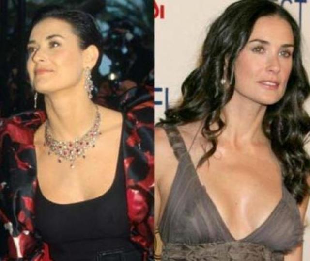 Деми Мур. Актриса во многом обязана своей нынешней внешностью пластическим хирургам, ее грудь, по мнению всех журналистов - не исключение.