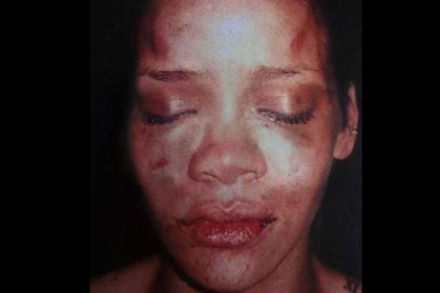 Крис Браун. В 2009 году рэпер был обвинен в нападении на свою девушку - певицу Рианну и задержан. По приговору он был обязан посещать реабилитационный центр и учиться управлению гневом, но из-за систематического нарушения правил был принужден проходить реабилитацию с проживанием.