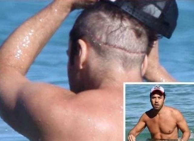 В 2010 году скандальный блог о знаменитостях опубликовал фотографии Пивена с огромным шрамом на затылке. Предполагается, что это связано с пересадкой волос.