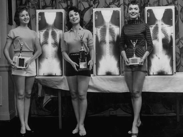 Мисс идеальная осанка - 1956 год. В этом конкурсе оценивалась не внешность конкурсанток, а их рентгеновские снимки. Модели Марианна Баба, Луис Конвей и Рут Свенсен стоят возле своих рентгеновских фото, которые принесли им призовые места.
