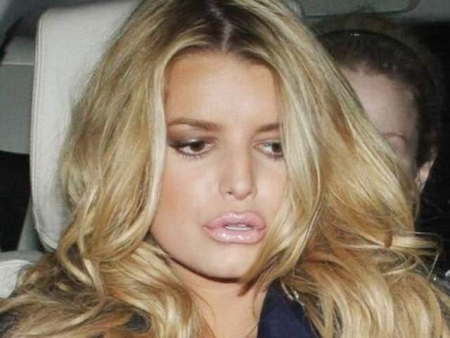 Она прошла процедуру по увеличению губ протеиновыми инфекциями. Результат не понравился поп-диве, и она во всеуслышание призналась, что весьма жалеет о содеянном, ведь раньше ее лицо выглядело куда более привлекательным.
