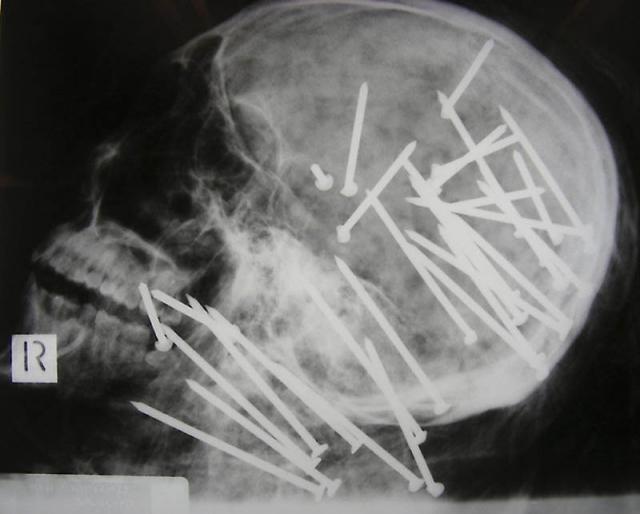 Череп китайца, которому в голову выстрелили пневматическим молотком.