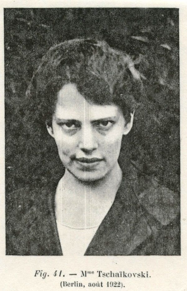 Во время войны Шанцковска работала на заводе, где изготовлялись взрывчатые вещества, и шрамы на теле, которые она выдавала за следы от штыков, полученные во время расправы над царской фамилией, объяснялись ранениями, полученными при взрыве