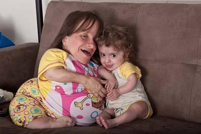 Американка из штата Кентукки является счастливой матерью троих детей. Женщина страдает от остеогенеза - заболевания, вызывающего хрупкость костей.