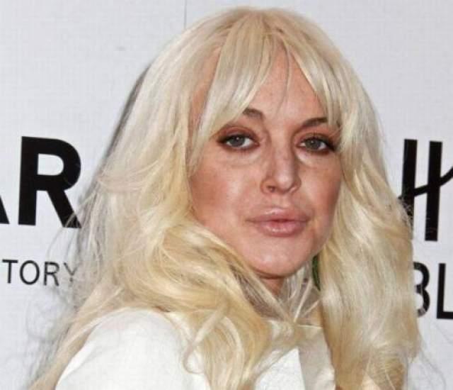"""Пластический хирург Гарт Фишер, который работает со звездами, заявил, что лишь взглянув на фотографии Лохан, сразу понял, что она ложилась под нож. Он добавил, что девушка также использовала филлеры. """"Она выглядит так, будто ей вкололи избыточное количество филлеров"""", - сказал он."""