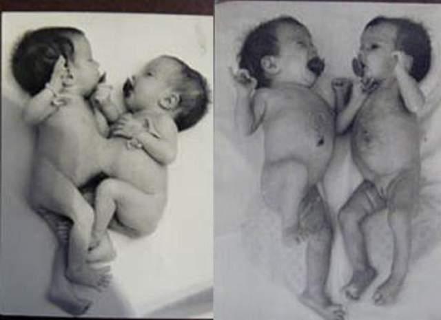 Анна и Татьяна Коркины , родились 9 апреля 1990 года. 19 мая того же года в Челябинске была проведена уникальная операция по разделению этих сиамских близнецов - они срослись животами.