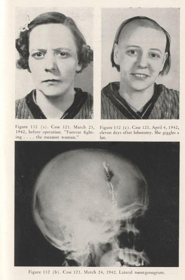 Во многих случаях к операции не было никаких показаний. Фриман потерял чувство меры и продолжал оперировать даже после появления нейролептиков.