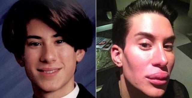 Первый раз он оперировался в 18 лет - менял форму носа. С тех пор житель Нью-Йорка перенес 149 различных процедур и 19 серьезных операций.