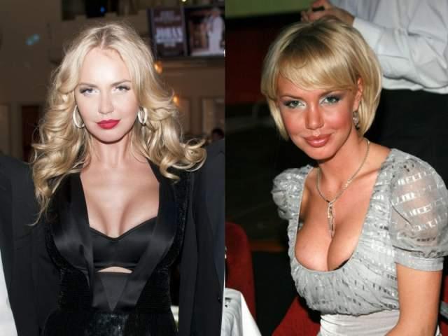 Импланты в грудь, коррекция носа и, конечно, увеличение и без того пухлых чувственных губ. Губы стали просто нереально большими. Но позднее она приблизила хирургически и грудь, и губы к более натуральному облику.