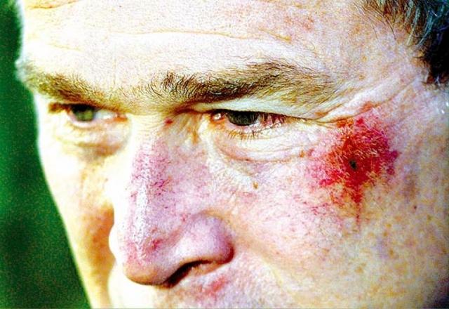 Как сообщил его личный врач Ричард Табб, досадный инцидент произошел, когда Буш смотрел в Белом доме телерепортаж о матче по американскому футболу.
