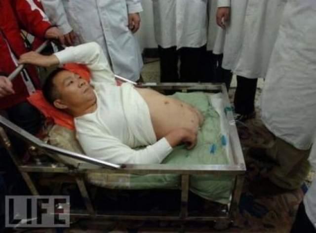 Он перенес несколько операций, в ходе которых кожу с лица пересадили на оставшуюся часть тела.