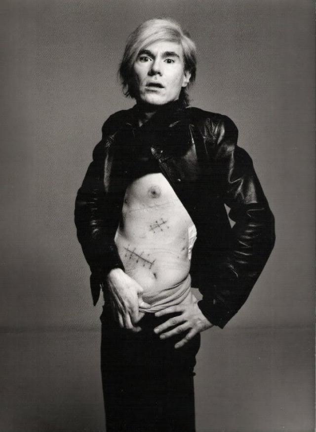 Уорхол перенес клиническую смерть, но быстро пошел на поправку. Художник стал еще более популярным, даже превратив свои шрамы в очередной арт-объект.