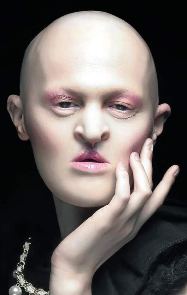 С самого рождения Мелани Гайдос страдает от редкого генетического заболевания под названием «эктодермальная дисплазия», не смертельное само по себе, оно все же заметно отражается на облике Гайдос.