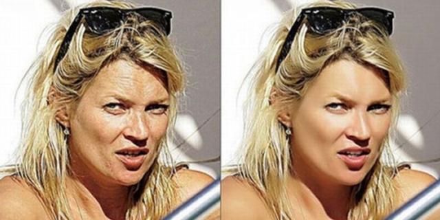 Кейт Мосс. Разве может лицо модели быть испещрено морщинами? Конечно нет, от них нужно избавиться!
