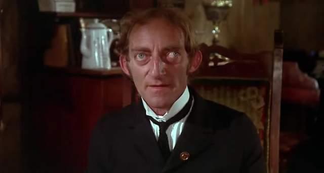 """Марти Фельдман, 1934-1982, Великобритания. Английский писатель и комический актер стал популярен благодаря ролям в фильмах Мела Брукса - """"Молодой Франкенштейн"""" (1974) и """"Немое кино"""" (1976)."""