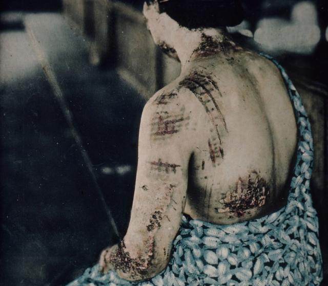 На коже одной из жертв ожоги повторили текстуру кимоно.