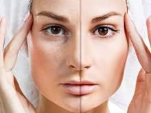Названы 4 продукта, которые уродуют кожу на лице