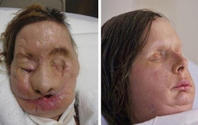Карла Нэш (Charla Nash) из Коннектикута, сильно пострадала после того, как шимпанзе друга раздер ей лицо. Charla Nash получила полную трансплантацию лица в 2011 году.