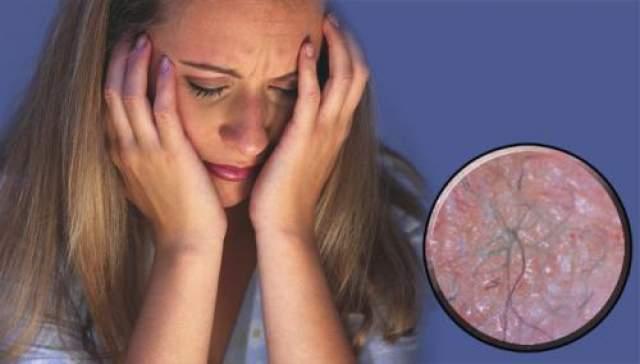 19. Болезнь Моргеллонов Характеризуется повреждением кожи, при этом больные жалуются, что под их кожей ползают и кусаются насекомые или черви, а также утверждают, что находят у себя под кожей некие волокна. Неизвестно, новая ли это болезнь или просто смешение уже существующих.