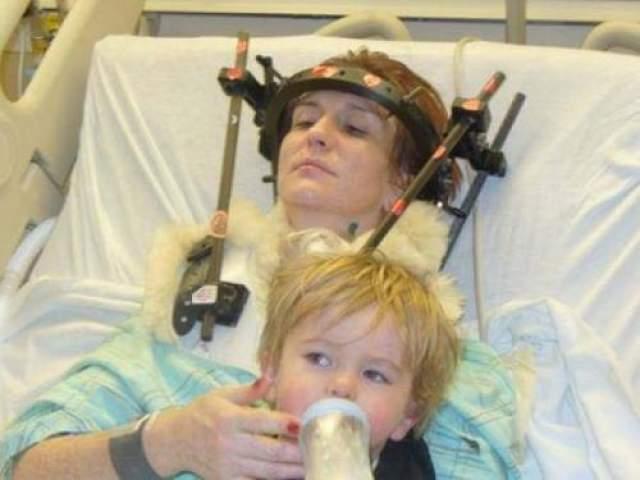 Женщина выжила после обезглавливая В январе 2007 года Шэннон Мэллой попала в автокатастрофу, в результате чего ее череп был отделен от позвоночника.