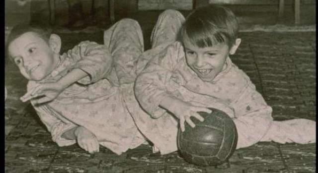 Маша и Даша Кривошляповы. Родились 4 января 1950 года - умерли 14 апреля 2003 года. Самые известные в СССР и России ишиопаги (однояйцевые близнецы, которые не полностью разделились).