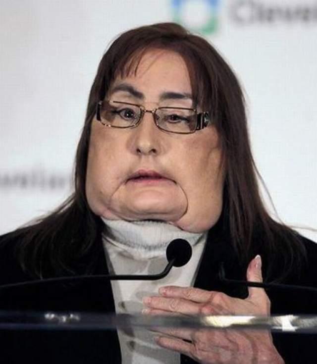 22 декабря 2008 года они пересадили ей 80% лица... только что умершей женщины... Операция длилась 22 часа. Конечно, Конни мало похожа на себя прежнюю. Однако пациентка довольна. Пересаженные ткани прекрасно прижились.