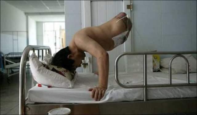 Пенг постоянно укрепляет верхнюю часть тела и с помощью протезов может ходить.