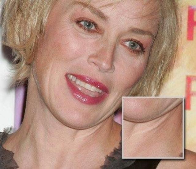 Шерон Стоун получила свой шрам на шее во время верховой езды еще в детстве.