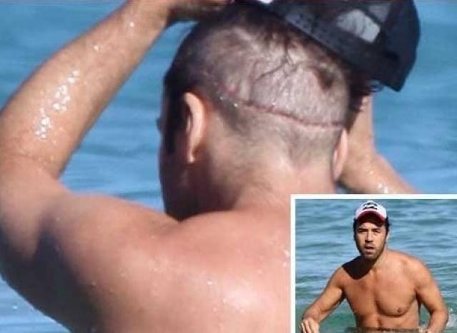 Своего секрета он не раскрывает, однако, в 2010 году скандальный блог о знаменитостях TMZ опубликовал фотографии Пивена с огромным шрамом на затылке. Предполагается, что это связано с пересадкой волос.