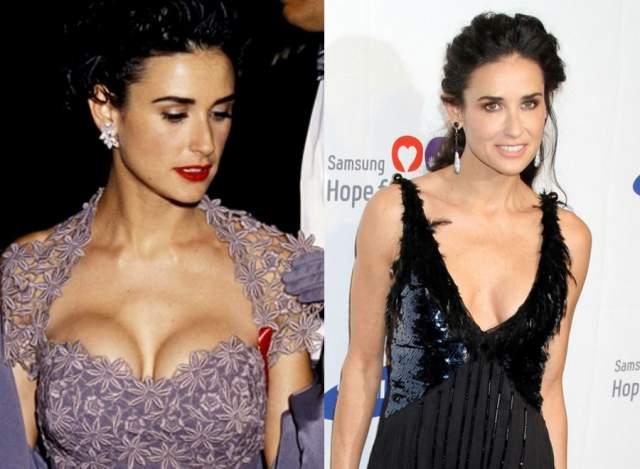 """Кроме этого, Деми не единожды меняла форму груди, каждый раз ставя импланты наиболее """"модной"""" формы."""
