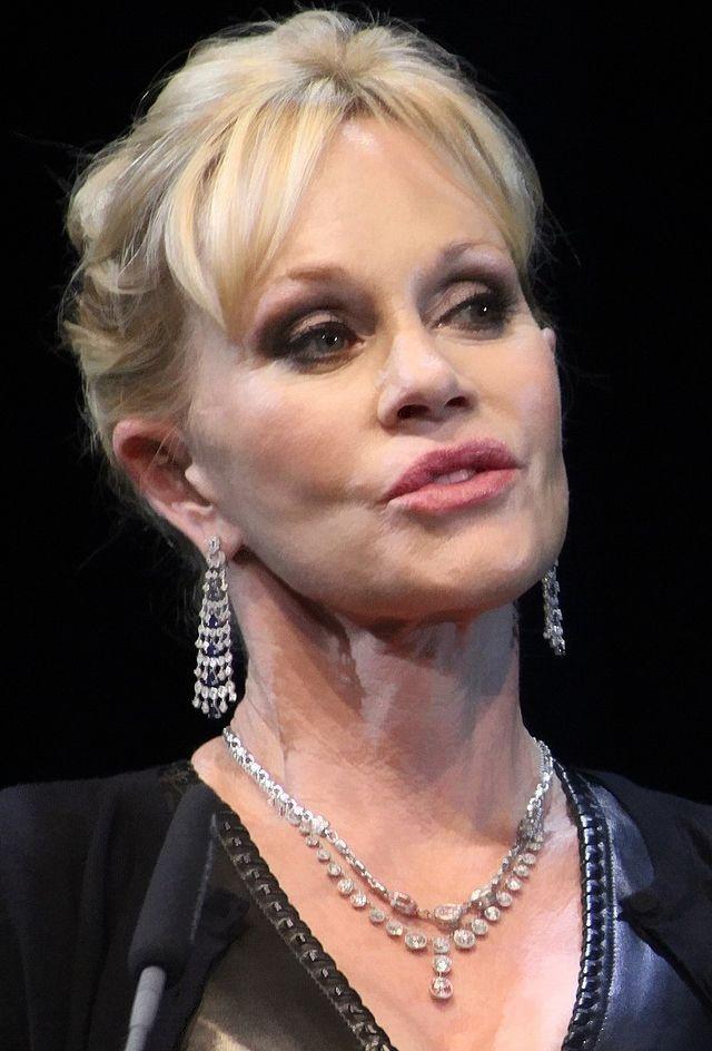 Впоследствии все имплантаты были удалены, но неизгладимый след на лице 59-летней актрисы они оставили.
