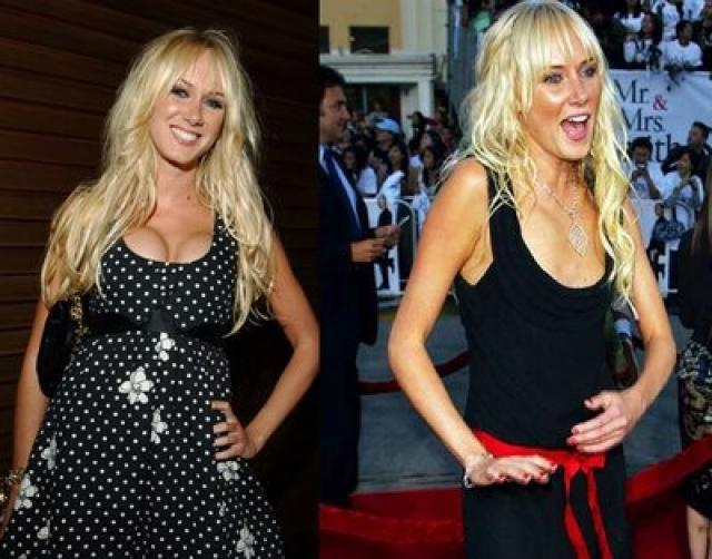 Кимберли Стюарт. Модель, актриса, а также дочь знаменитого музыканта Рода Стюарта увеличила грудь в 1997 году, в возрасте 18 лет, по собственному признанию, из-за неуверенности в себе.