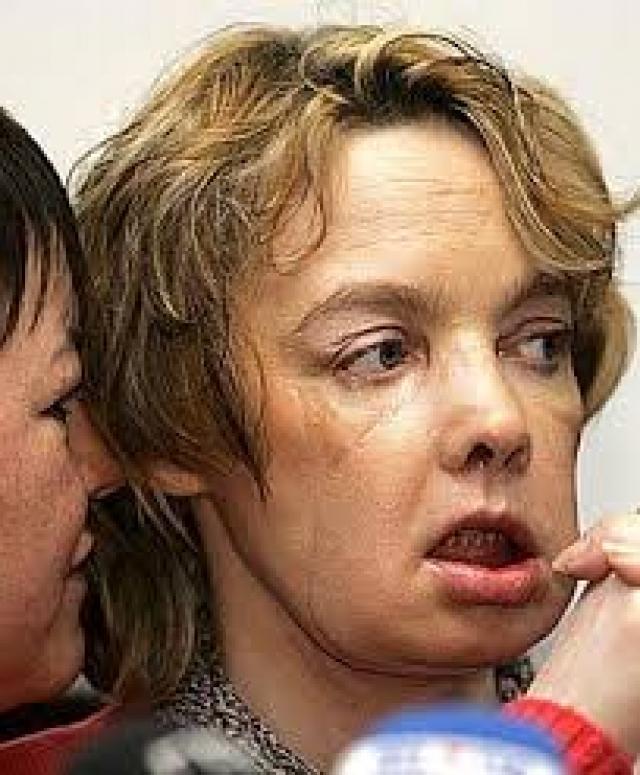 Когда она глянула на себя в зеркало, пришел ужас – лица у нее попросту больше не было. Нос, рот и подбородок были изуродованы настолько сильно, что хирурги сразу сообщили Изабель: восстанавливать с помощью пластики здесь просто нечего. Вместо этого они предложили провести первую в истории операцию по трансплантации лица.