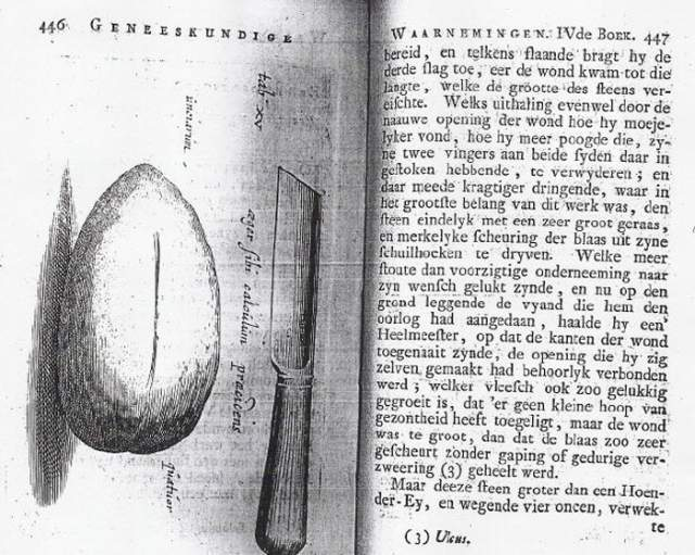Камень, к слову, был размером с куриное яйцо. При операции присутствовал только его брат. Иоанн сделал надрез в промежности, зажав камень левой рукой, и вытащил его. Но для того, чтобы наложить швы, кузнец все-таки пригласил врачей.