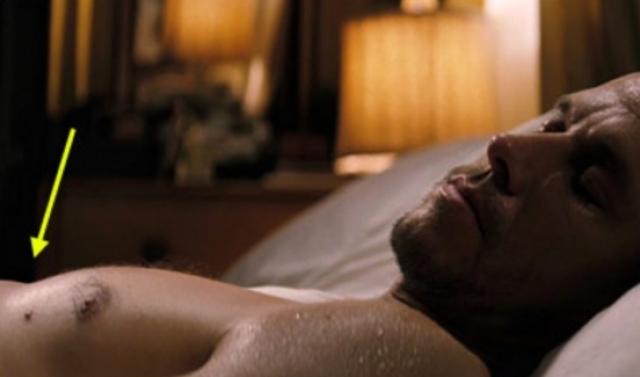 Актеру такой дефект затрудняет съемочный процесс, когда он должен быть в кадре без рубашки.