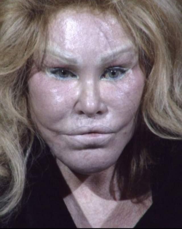 Джоселин была красавицей и мамой двоих детей, которой в один прекрасный день изменил успешный и богатый муж. С тех пор она решила изменить свою внешность в лучшую сторону, чтобы подобное не повторилось.